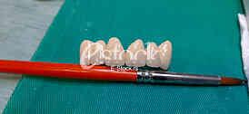 Zubna proteza Teeth